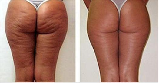 appareil massage electrique Cellutherapie anti cellulite resultats avant apres