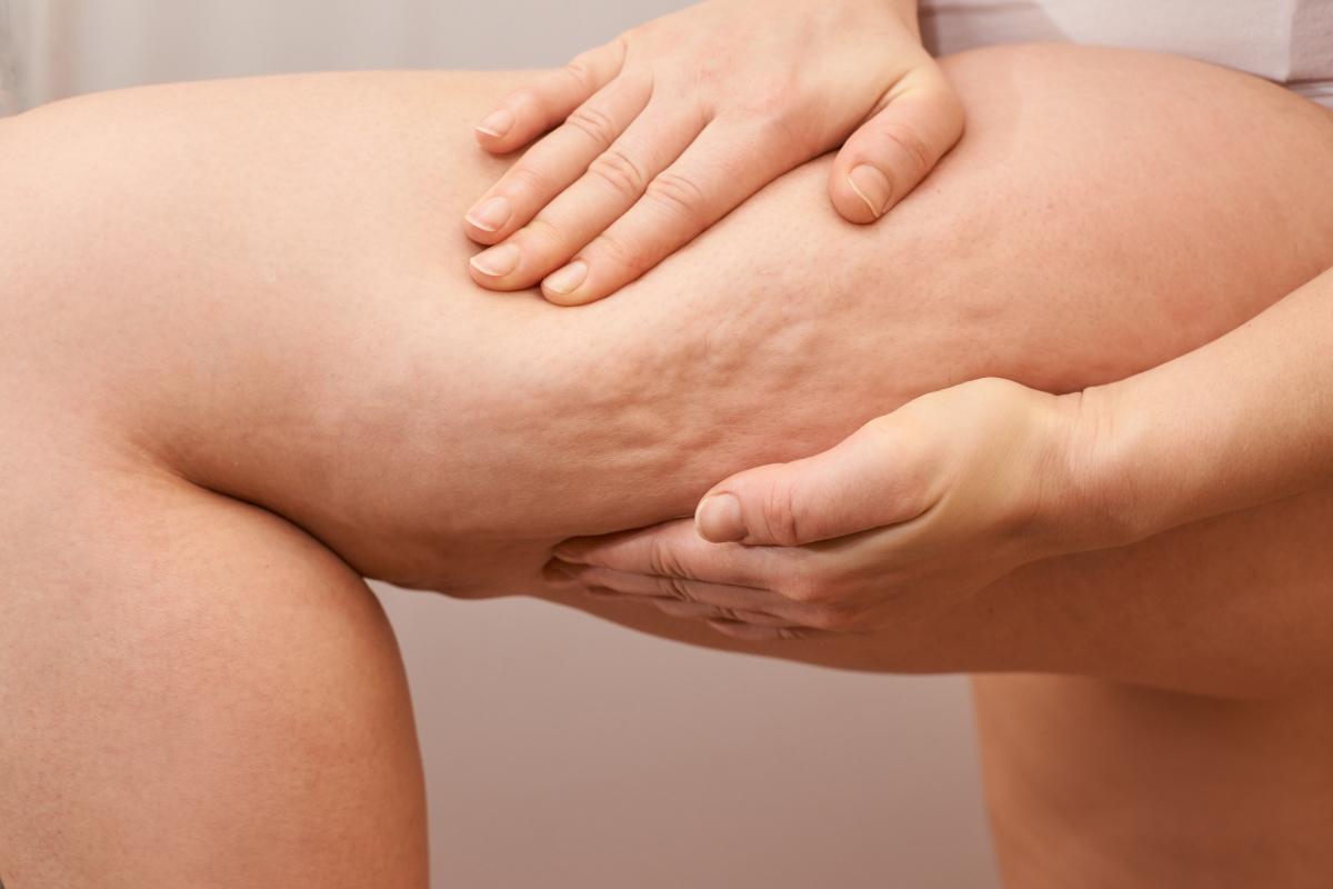 comment eliminer la cellulite